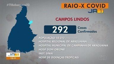 Raio-x Covid: Campos Lindos tem 292 casos confirmados da Covid-19 - Raio-x Covid: Campos Lindos tem 292 casos confirmados da Covid-19