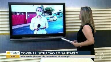 Confira os números da pandemia em Santarém e em todo o Pará - Dados são atualizados diariamente pela Semsa e Sespa.