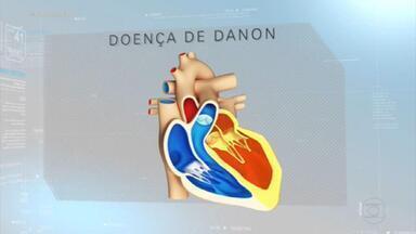 Irmãos com doença rara fazem transplantes de coração em intervalo de 48 horas - Paloma, de 19 anos, e Gustavo, de 18, têm a doença de Danon, que pode causar fraqueza muscular geral, problemas na retina e deficiência intelectual, mas o coração é sempre o mais afetado. O transplante do órgão é a única saída.