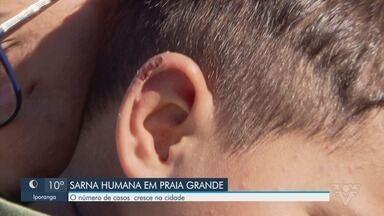 Casos de sarna humana se espalham em Praia Grande - Prefeitura começou a fazer ações nos bairros mais atingidos pela doença de pele.