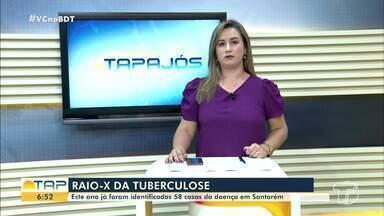 Este ano já foram identificados 58 casos de tuberculose em Santarém - Saiba mais sobre os dados da doença.