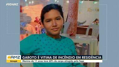 No Amapá, menino morre em incêndio - Vítima teve 60% do corpo atingido pelo fogo.