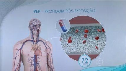 Vírus da Aids é transmitido pelo sangue, esperma e secreção vaginal