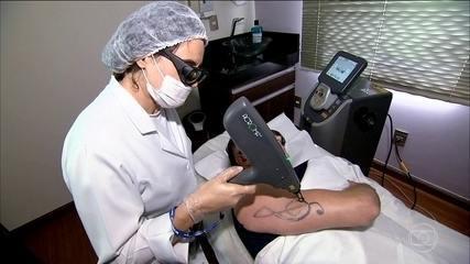 Tratamento com laser permite a remoção de tatuagens