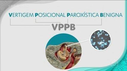 Saiba mais sobre a síndrome VPPB