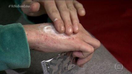 Dermatite atópica pode se agravar com crises emocionais