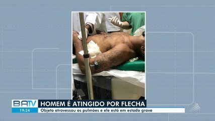 Homem atingido por flecha em Salvador tem estado de saúde grave