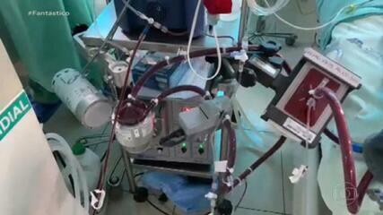 Veja depoimentos de recuperados da Covid que fizeram mesma terapia que Paulo Gustavo: ECMO