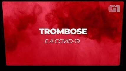 Entenda como a trombose pode atingir as pernas e qual a relação com a Covid-19