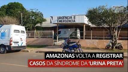 VÍDEO: Amazonas volta a registrar casos da síndrome da urina preta