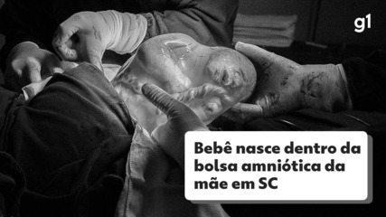 Bebê nasce envolvido por bolsa amniótica em SC