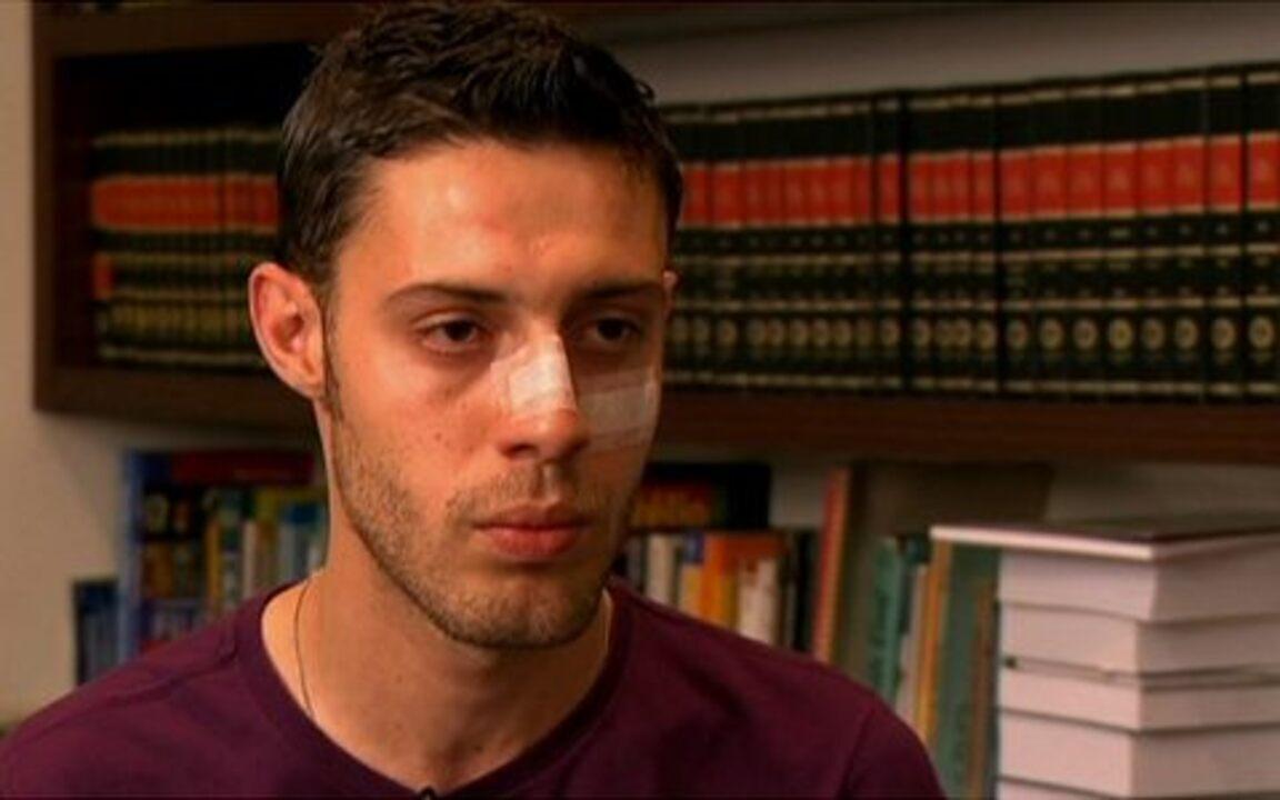Estudante agredido na Avenida Paulista fala pela primeira vez ao Fantástico