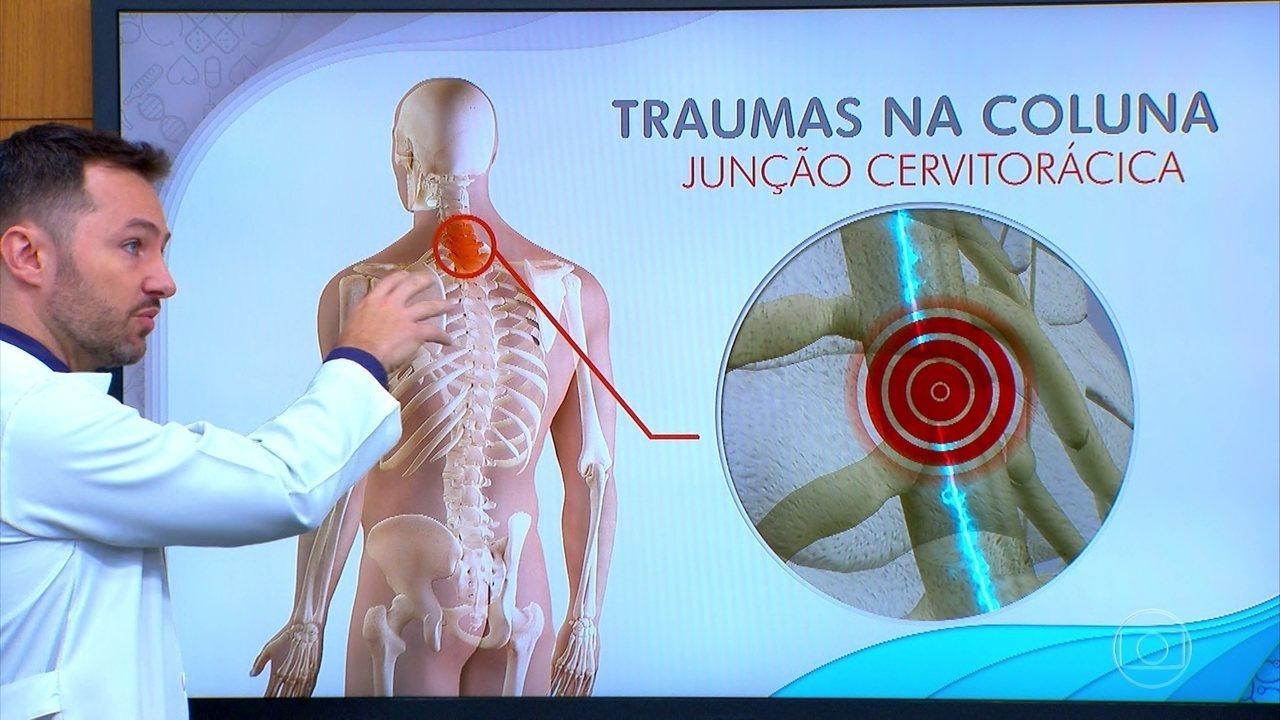 Maior parte dos traumas acontece na coluna cervical