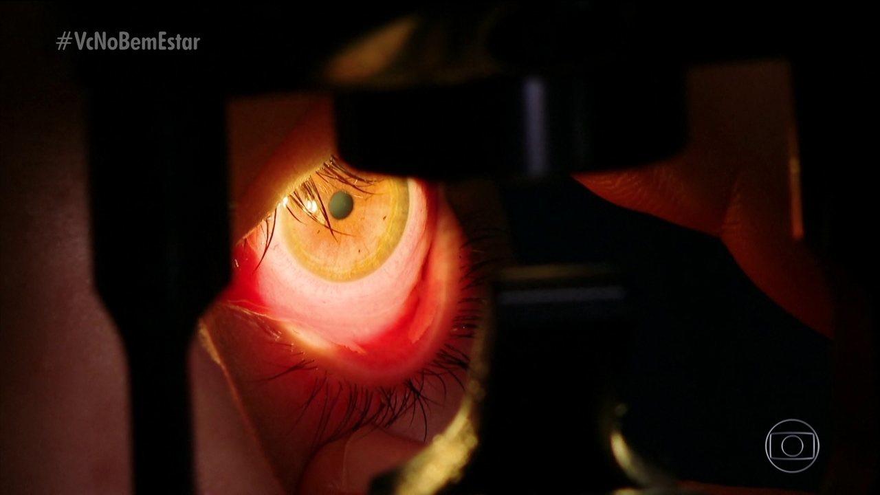 Resultado de imagem para Conjuntivite mal tratada pode levar à perda da visão