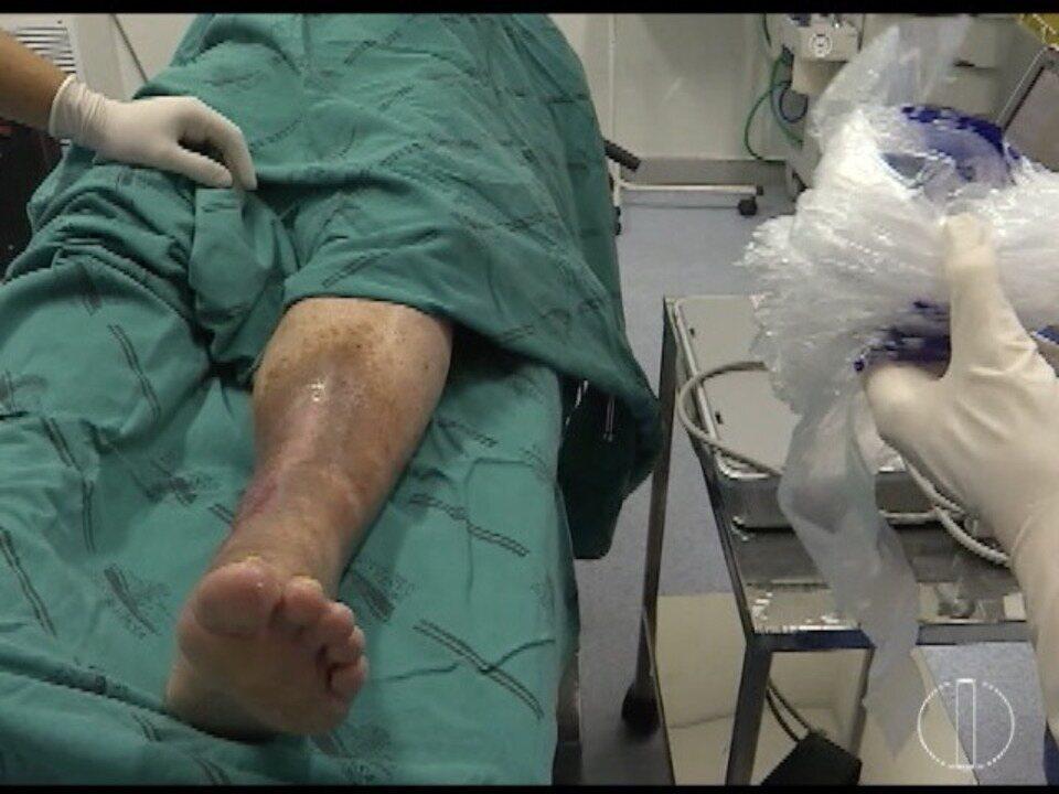 Por perto de veia cirurgião