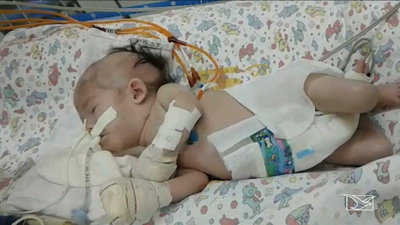 Mãe de criança com cardiopatia denuncia falta de leitos de UTI no Maranhão