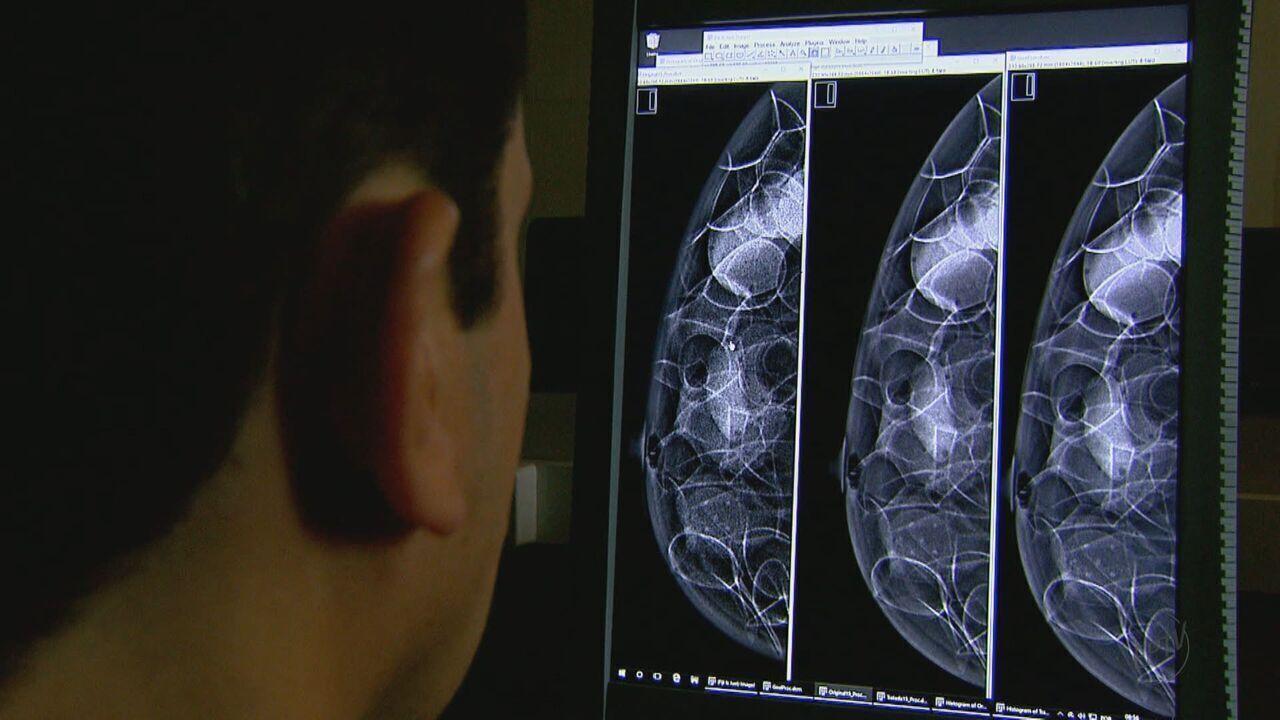 Pesquisa reduz radiação nas mamografias