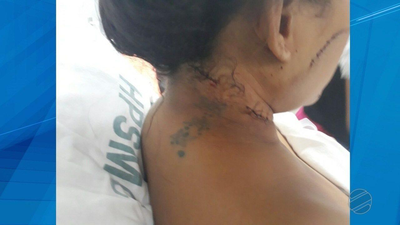 Mulher que sobreviveu ao ataque de fúria do ex-companheiro agora vive com medo