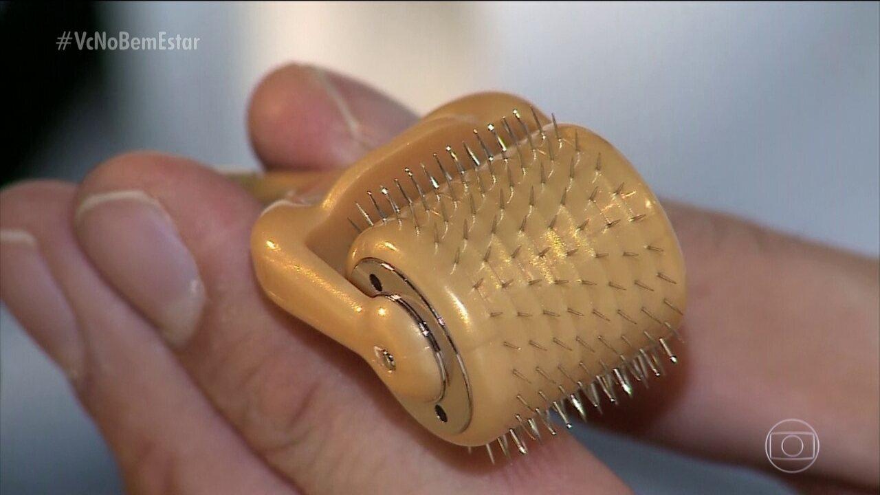 Microagulhamento pode ser usado para suavizar cicatrizes