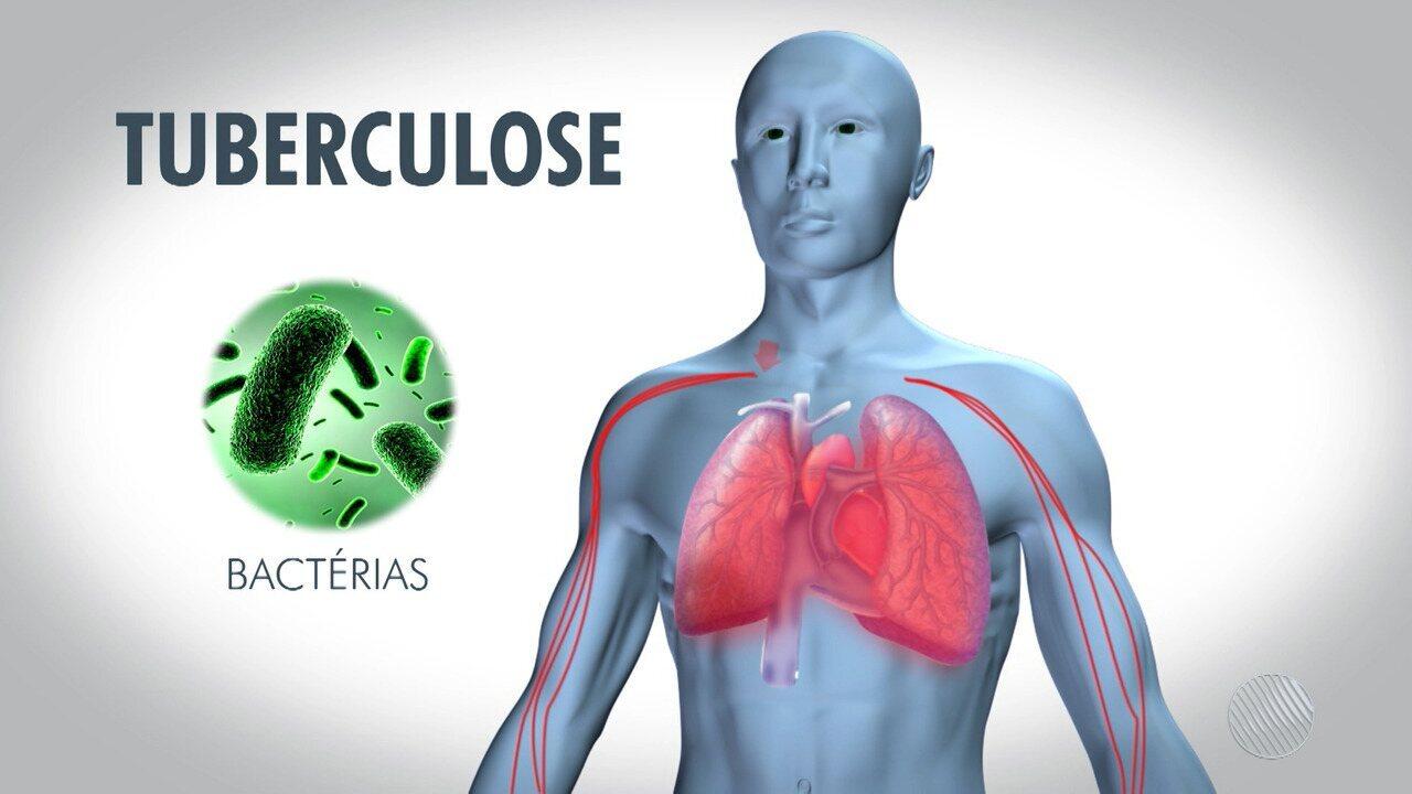 Resultado de imagem para tuberculose