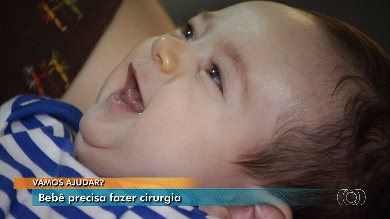 Família luta para conseguir cirurgia para bebê, em Goiânia