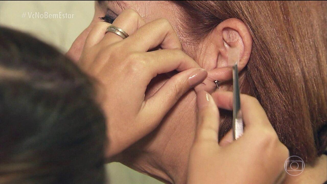 Auriculoterapia estimula pontos na orelha para manter o equilíbrio
