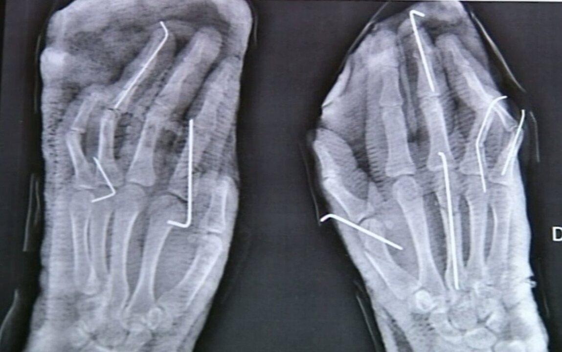 Mulher conta que foi agredida por namorado com com cutelo e perdeu dois dedos, em Goiás