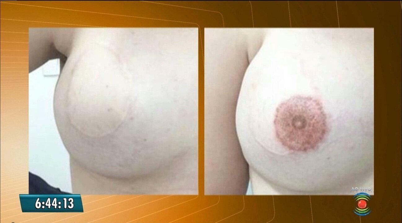 Estúdio de tatuagem seleciona mulheres que têm câncer de mama, em Campina Grande