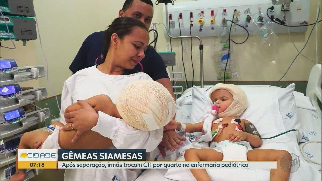 Após separação, gêmeas que nasceram unidas pela cabeça deixam CTI em Ribeirão Preto