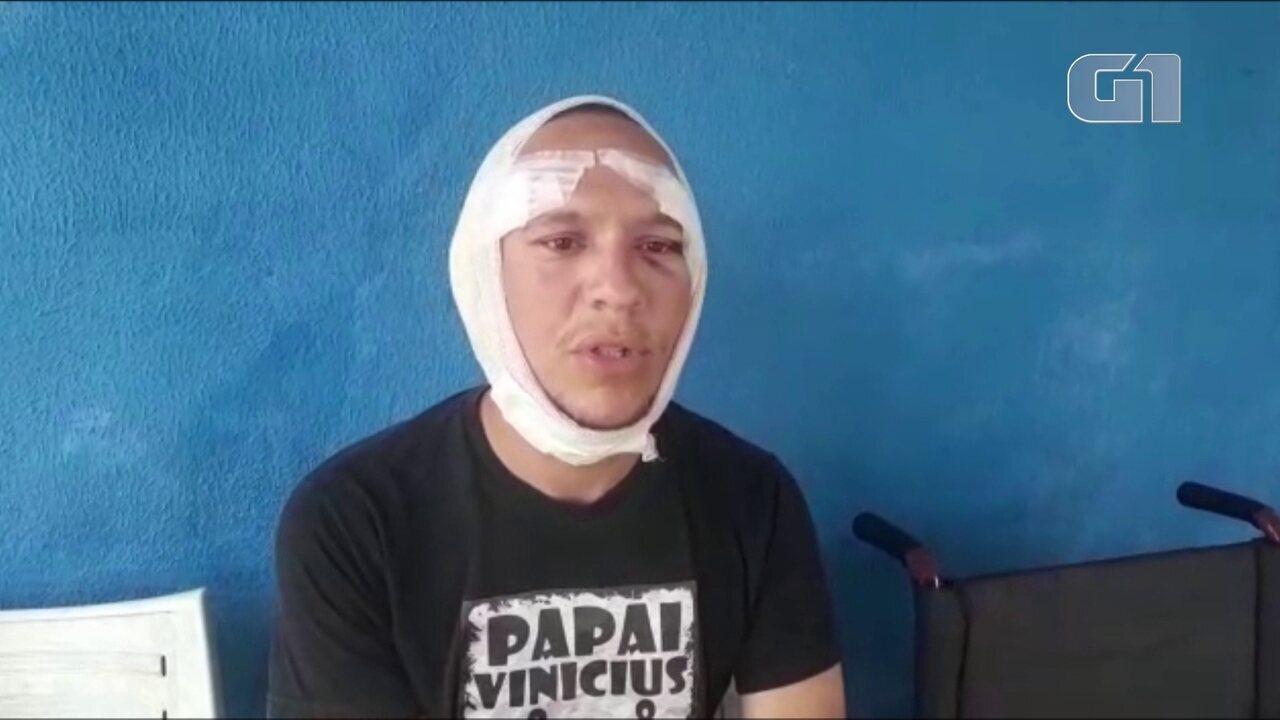Resultado de imagem para Surfista é mordido na cabeça por tubarão em Fernando de Noronha