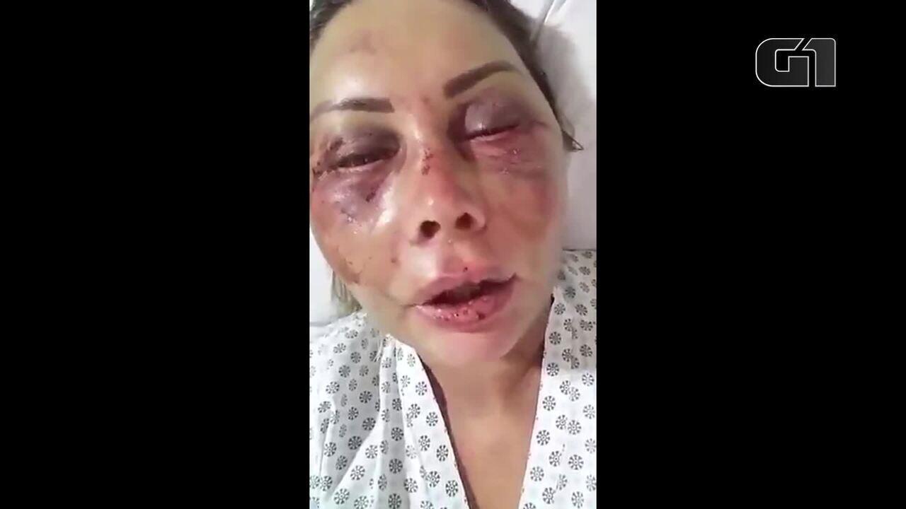 Mulher espancada em apartamento na Barra da Tijuca diz que estará bem em breve