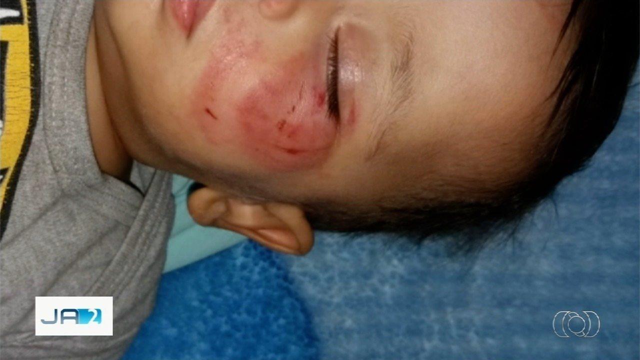 Bebê é mordido cerca de dez vezes por colega de creche em Piracanjuba