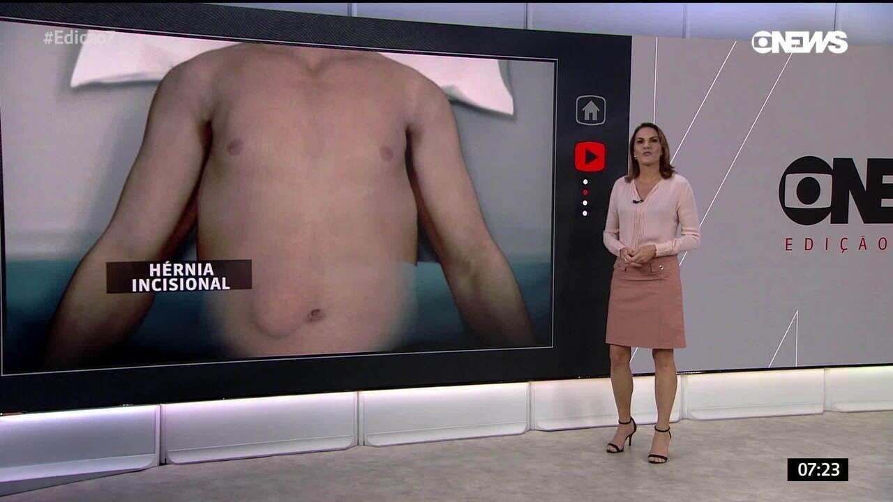 Entenda como se formou a hérnia no abdome de Bolsonaro