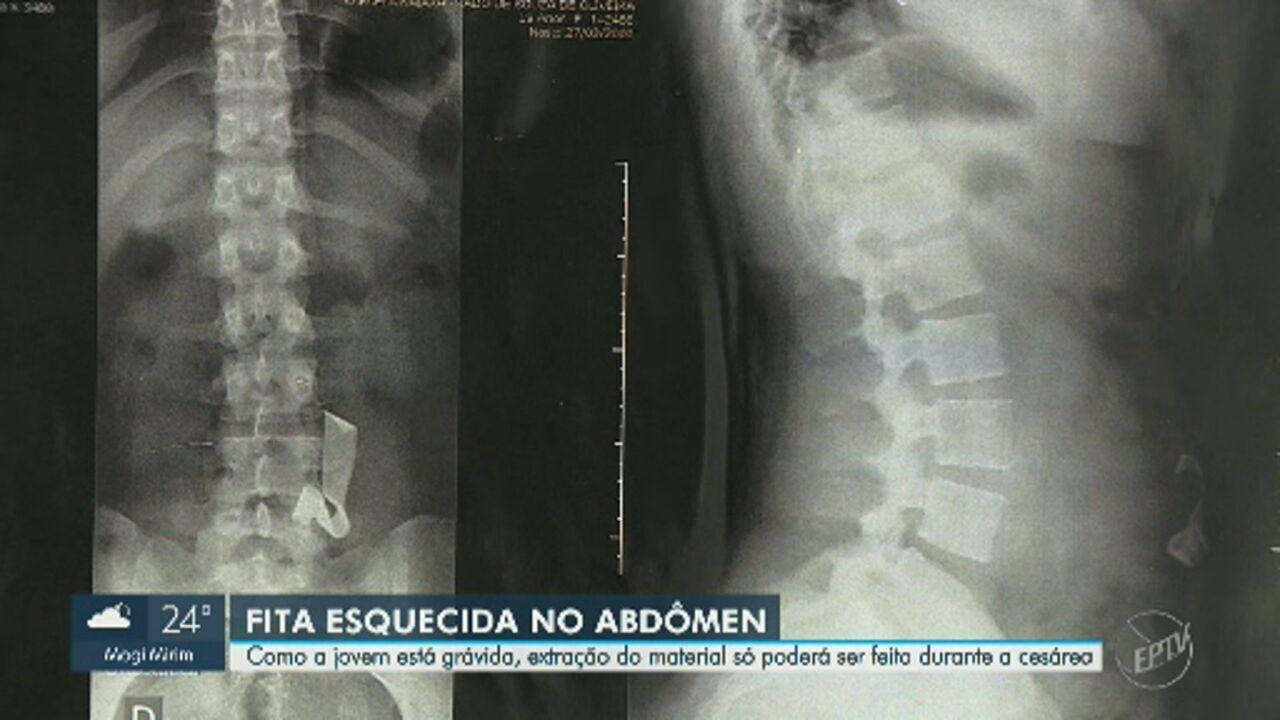 Jovem descobre gravidez durante exames para extrair fita cirúrgica esquecida em cesárea