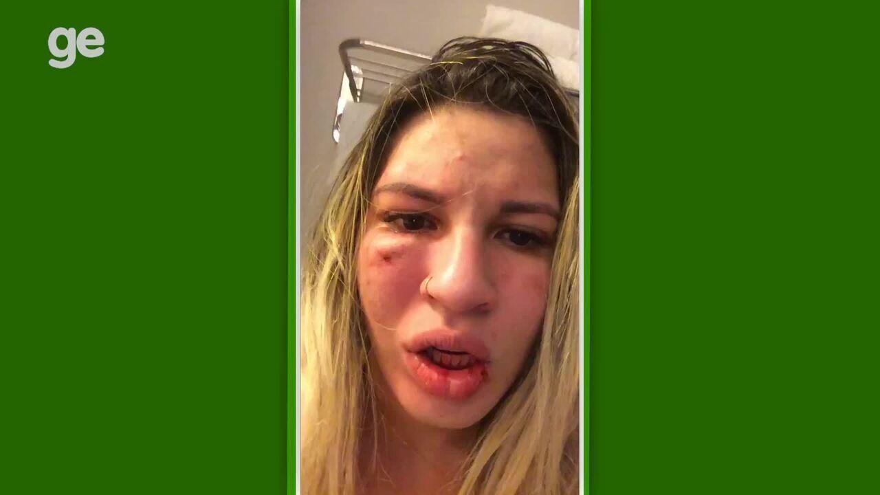 Mulher de Jean posta vídeo mostrando que foi agredida pelo goleiro do São Paulo