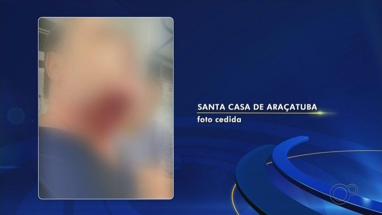 Paciente surta, arranca pedaço de rosto de médico com mordida e quebra portas de hospital