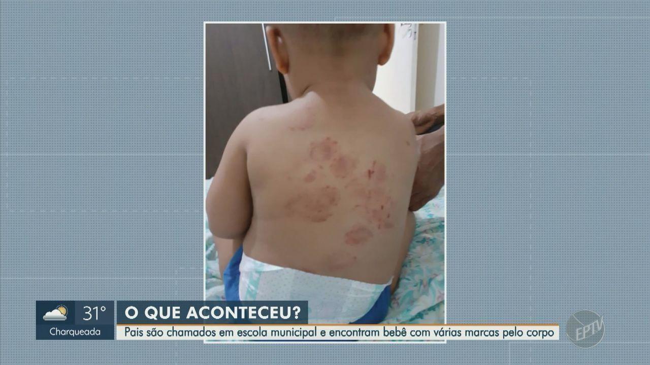 Pais encontram bebê com várias marcas pelo corpo em escola municipal de Piracicaba